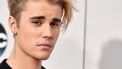 Photo of Justin Bieber Confirms He Is Battling Lyme Disease