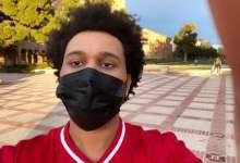 The Weeknd's Plastic Surgery Look Shocks Fans